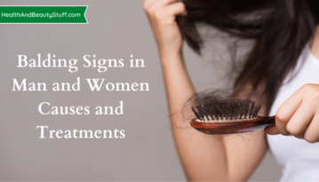 Balding Signs in Man and Women - Causes and Treatments