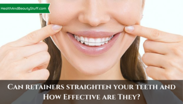 Can retainers straighten your teeth and How Effective are They?