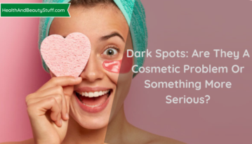 Dark Spots: Are They A Cosmetic Problem Or Something More Serious?