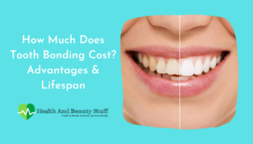 How Much Does Tooth Bonding Cost_ Advantages and Lifespan