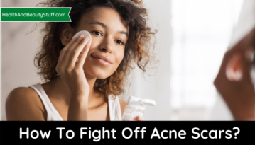 How To Fight Off Acne Scars?