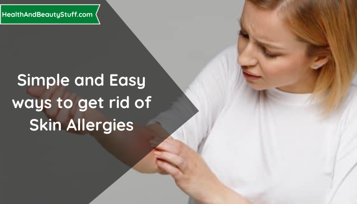 Simple and Easy ways to get rid of Skin Allergies