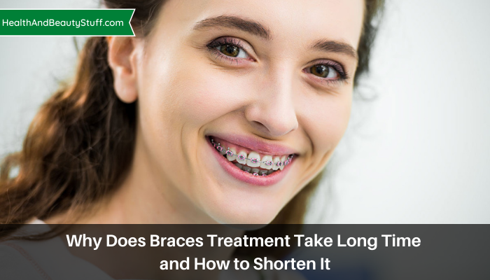 Why Does Braces Treatment Take Long Time and How to Shorten It